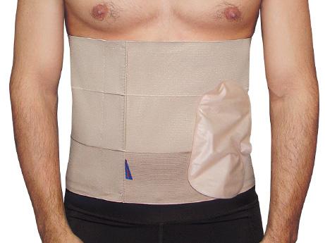 La técnica británica podría ser el fin de la incomoda bolsa de colostomía.