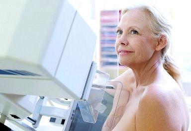 El mayor beneficio de la mamografía  se produce a partir de los 50, donde se sitúa la máxima incidencia de este tumor