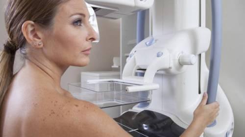 «Cuanto más joven es la mama, más tejido glandular tiene y más difícil resulta detectar una lesión».